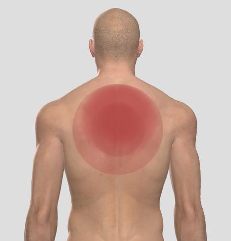 muskelinflammation i bröstet