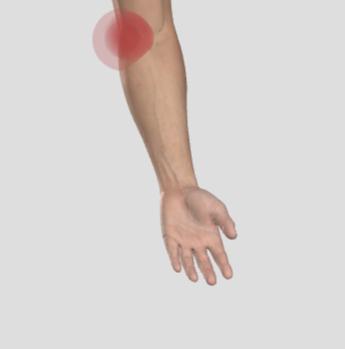 golfarmbåge, smärta på insidan av armbågen.