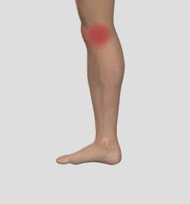ont i knä vid löpning