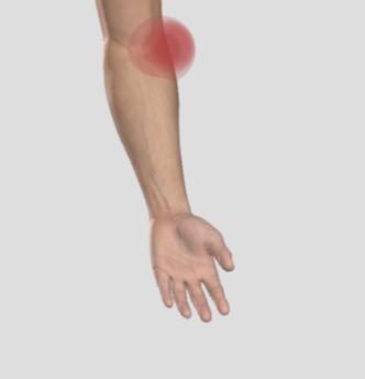 Tennisarmbåge eller musarm.  Ont på utsidan av armbågen.